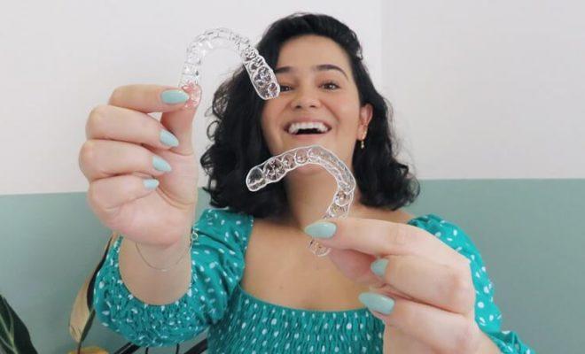 Aparelho Invisível Minha Experiência com os Alinhadores Transparentes Smilink